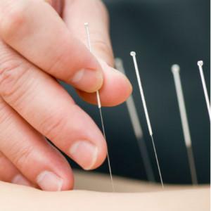 acupuncture R